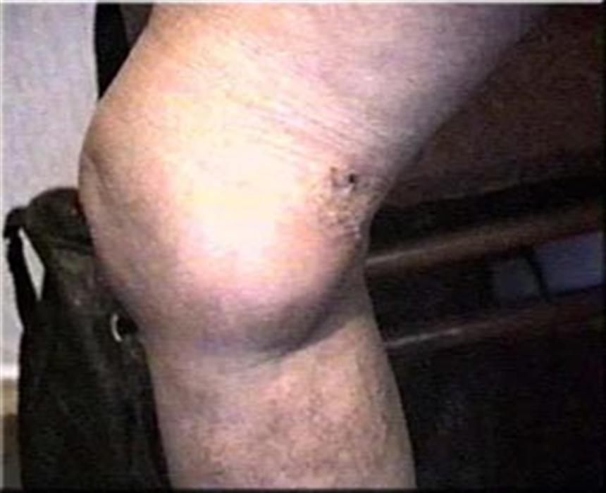 Лиотон или долобене после операции варикоз
